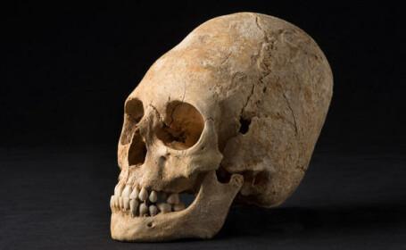 craniu, Alsacia