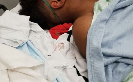 Adolescent de culoare, victimă a brutalității poliției. Oamenii legii: A căzut de pe bicicletă