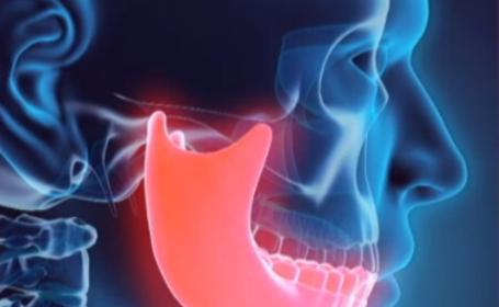 Ce se întâmplă dacă mușcăm cu dinții aliniați incorect