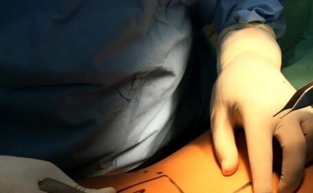 Cand adevarul doare: i-au pus anus artificial din greseala!