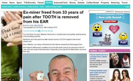 I-a lasat muti pe doctori! Unui barbat i-a crescut un dinte in ureche