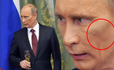 Putin, invinetit. Victima liftingului sau o sedinta de judo nefericita?