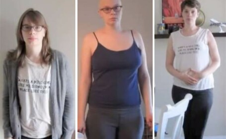 O tanara bolnava de cancer s-a fotografiat in fiecare saptamana timp de un an