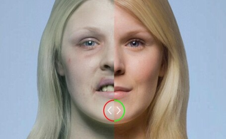Imaginile cu care medicii incearca sa ii convinga pe fumatori sa renunte la tutun. FOTO