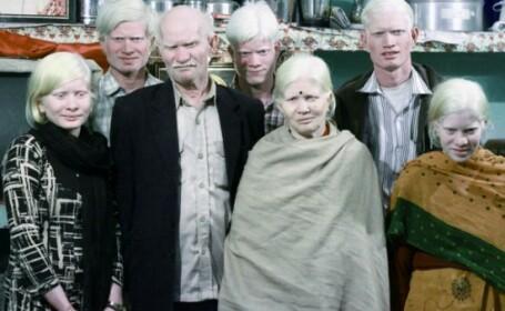 Una dintre cele mai celebre familii din India. Toti cei opt membri sufera de albinism. VIDEO