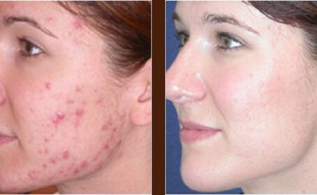 Cum scapati de acnee in trei zile. Remediul se afla si in camara ta