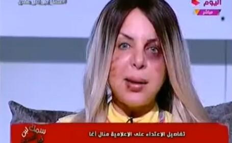 O cunoscută prezentatoare din Egipt a apărut la TV cu urme de violenţă pe faţă