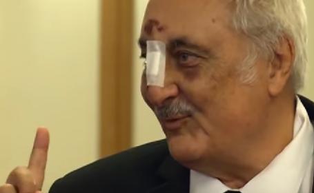 Deputatul PSD Bacalbașa a venit la Parlament cu nasul spart și ochii vineți: Am agățat o bordură