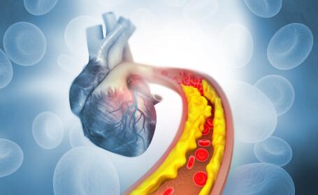 Cum ținem colesterolul sub control. Alimentul minune care ne ferește de infarct