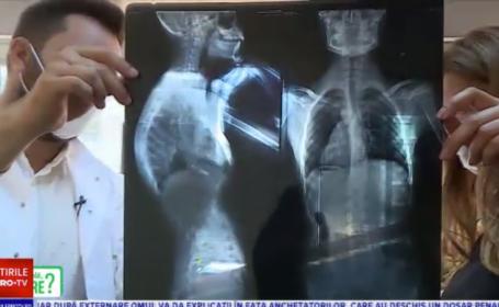 Cum apare durerea în coloană de la țigări. Care sunt remediile