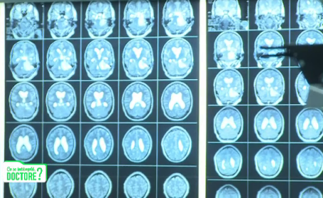 Radiografie craniu