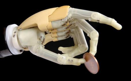 Bratul de robot, cunoscut sub numele de mana bionica, a ajuns in Romania