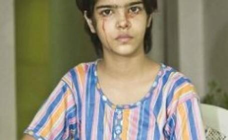 Fetita care sangereaza spontan provoaca panica in India
