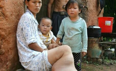 Drama unei femei din China care nu are bani pentru a-si trata piciorul si va trebui sa-l amputeze