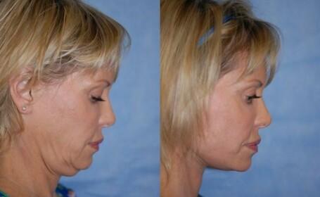 Efectele chirurgiei plastice. Cum arata mai multe persoane, dupa ce au apelat la un specialist. FOTO