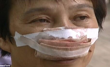 femeie mutilata
