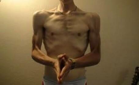 Drama unui tanar care ajunsese sa cantareasca doar 52 de kilograme, la 18 ani. Cum arata dupa ce a castigat lupta cu anorexia