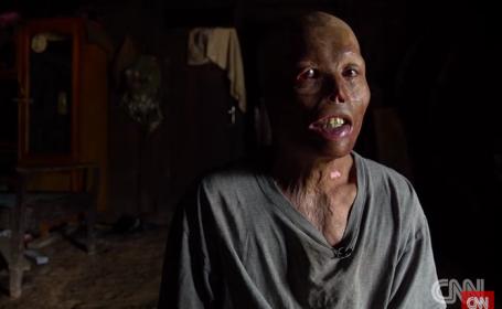 Victimele celor 80 de milioane de bombe neexplodate, lansate de SUA in Laos. Planul lui Obama pentru a opri macelul