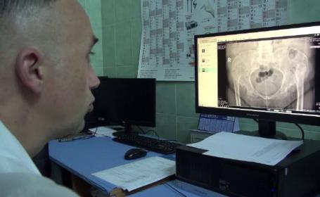 Operație în premieră în cazul unei femei de 68 de ani din Bacău