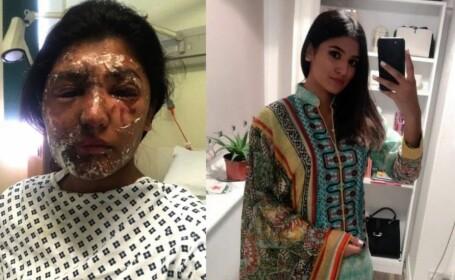 """Victima unui atac cu acid arată efectul unui an de tratamente: """"Cred că arăt bine"""""""