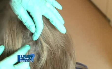 Stresul zilnic are impact direct asupra scalpului, crescând producția de sebum