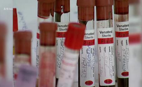 analize sange