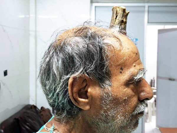 I-a crescut un corn de 10 cm după ce s-a lovit la cap