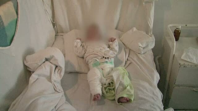 Batuta crunt de propria mama. O fetita de numai patru luni a trecut prin chinuri greu de suportat