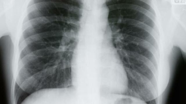 O infectie respiratorie banala poate ascunde o boala grava. Radiografia pulmonara, recomandata de medicii din Romania
