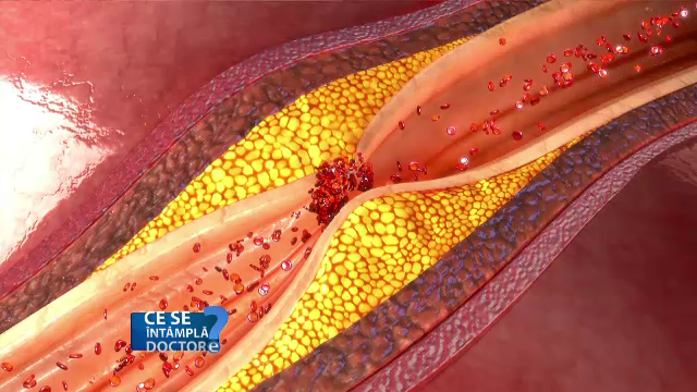 Gudronul din ţigări favorizează depunerile plăcilor de grăsime în interiorul vaselor de sânge