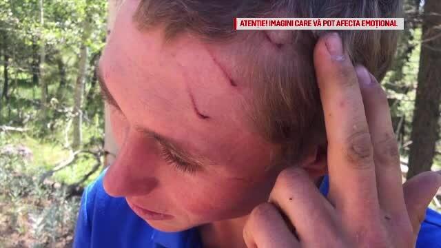Un tânăr a scăpat cu viață după ce a fost atacat de un rechin, un urs și un șarpe cu clopoței