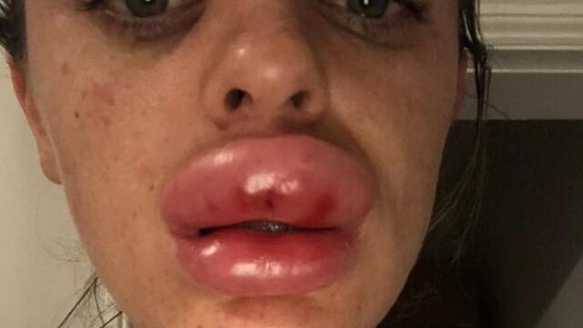 Tânără desfigurată după ce și-a mărit buzele la o petrecere. Ce a aflat la spital - Imaginea 1