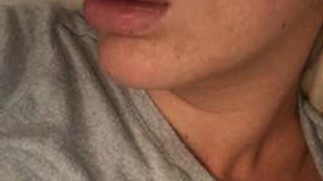 Tânără desfigurată după ce și-a mărit buzele la o petrecere. Ce a aflat la spital - Imaginea 2