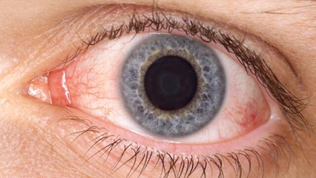 Ochii roșii ar putea fi un simptom rar al COVID-19, spun medicii