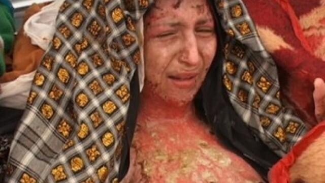 Femei chinuite:ingropate de vii, arse cu acid si mutilate in zona genitala!