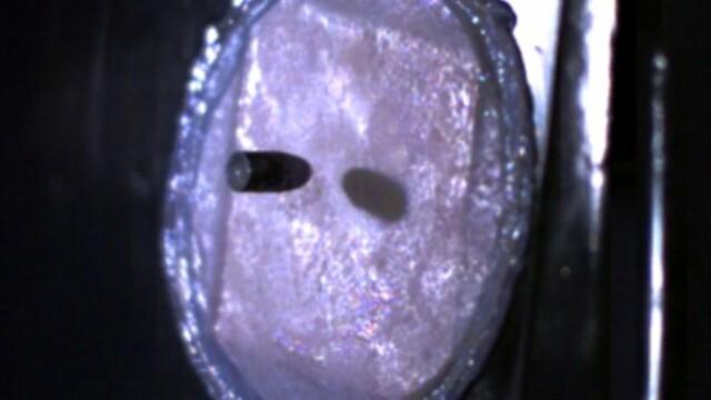 piele antiglont