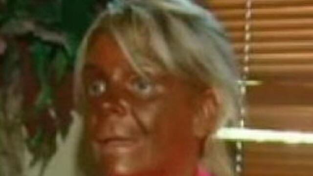 Cum arata acum cea mai bronzata femeie din lume, la 3 luni dupa ce a socat SUA cu aceasta poza.VIDEO - Imaginea 4