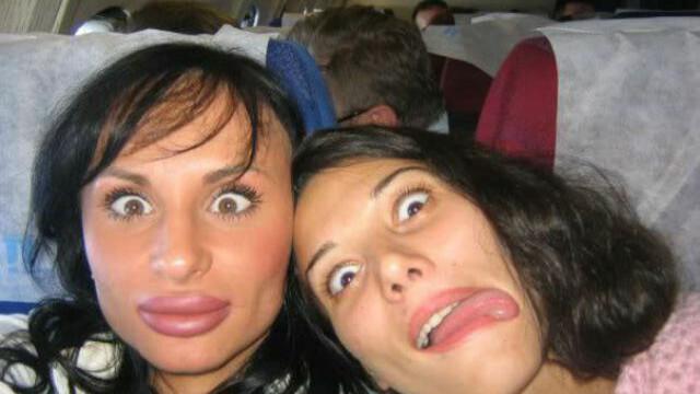 Desi erau frumoase, au vrut sa apeleze la operatii estetice. Rezultatul e dezastruos. GALERIE FOTO - Imaginea 25