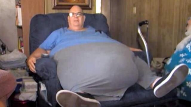 A trait un deceniu cu o tumora de 90 de kg in abdomen. \