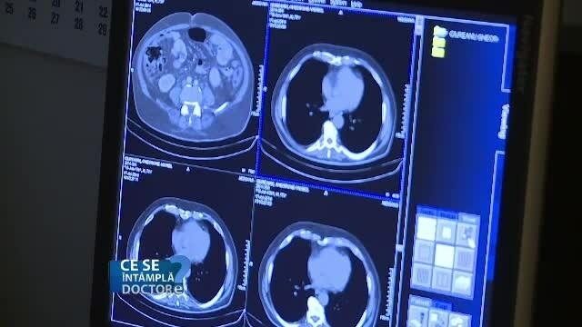 Computer tomograf sau RMN? Care sunt cele mai indicate analize pentru depistarea la timp a cancerului