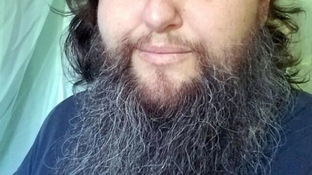 Fire de păr în barbă la femei. Care pot fi cauzele?