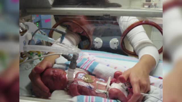 bebelus, operatii