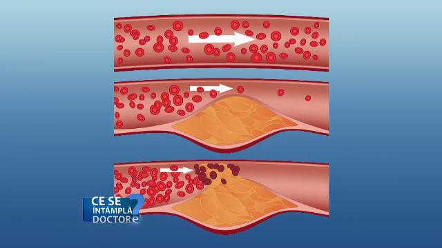 depuneri de grasime pe vasele de sange