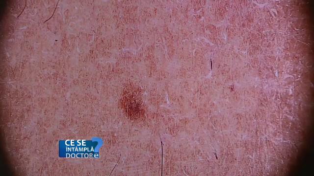 Cum arată cel mai periculos cancer de piele. Semnul pe care majoritatea persoanelor îl au