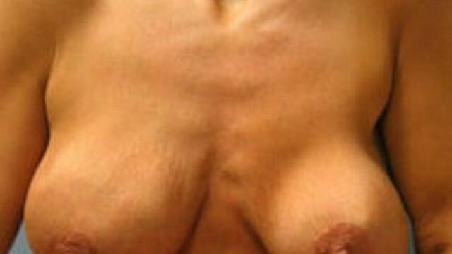 Monstri siliconati! Cand nici operatiile estetice nu mai ajuta... Vezi FOTO - Imaginea 6