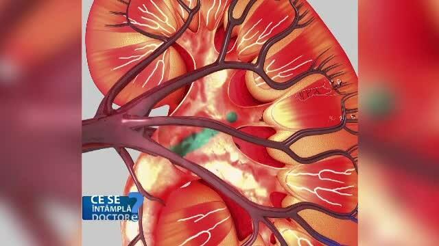 Funcția rinichiului este afectată în timp. Analiza care arată starea acestuia