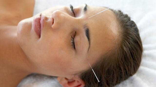 Tinerete vesnica fara bisturiu. Chirurgia estetica pierde teren in fata acupuncturii