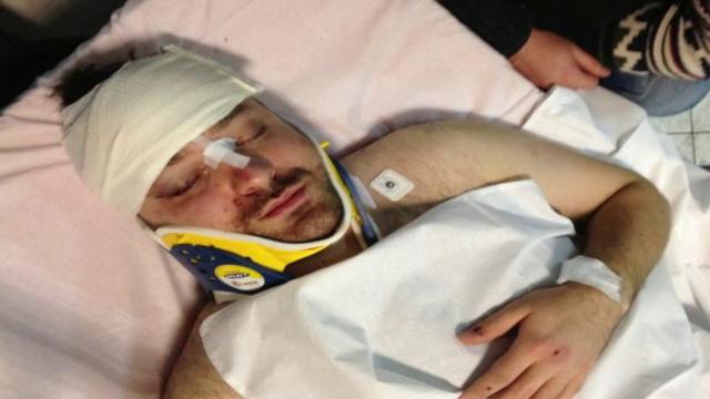 Omul de afaceri Andrei Tardea, internat in spital, dupa ce a fost batut intr-un loc public. VIDEO
