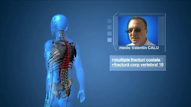 ANIMATIE GRAFICA Stirile ProTV. Care e starea medicala in acest moment a chirurgilor implicati in incidentul aviatic - Imaginea 4