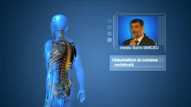 ANIMATIE GRAFICA Stirile ProTV. Care e starea medicala in acest moment a chirurgilor implicati in incidentul aviatic - Imaginea 3